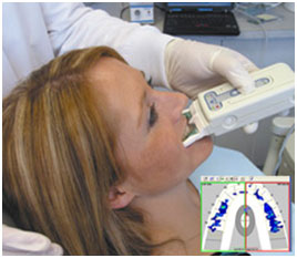 tekscan-occlusal-analysis-3